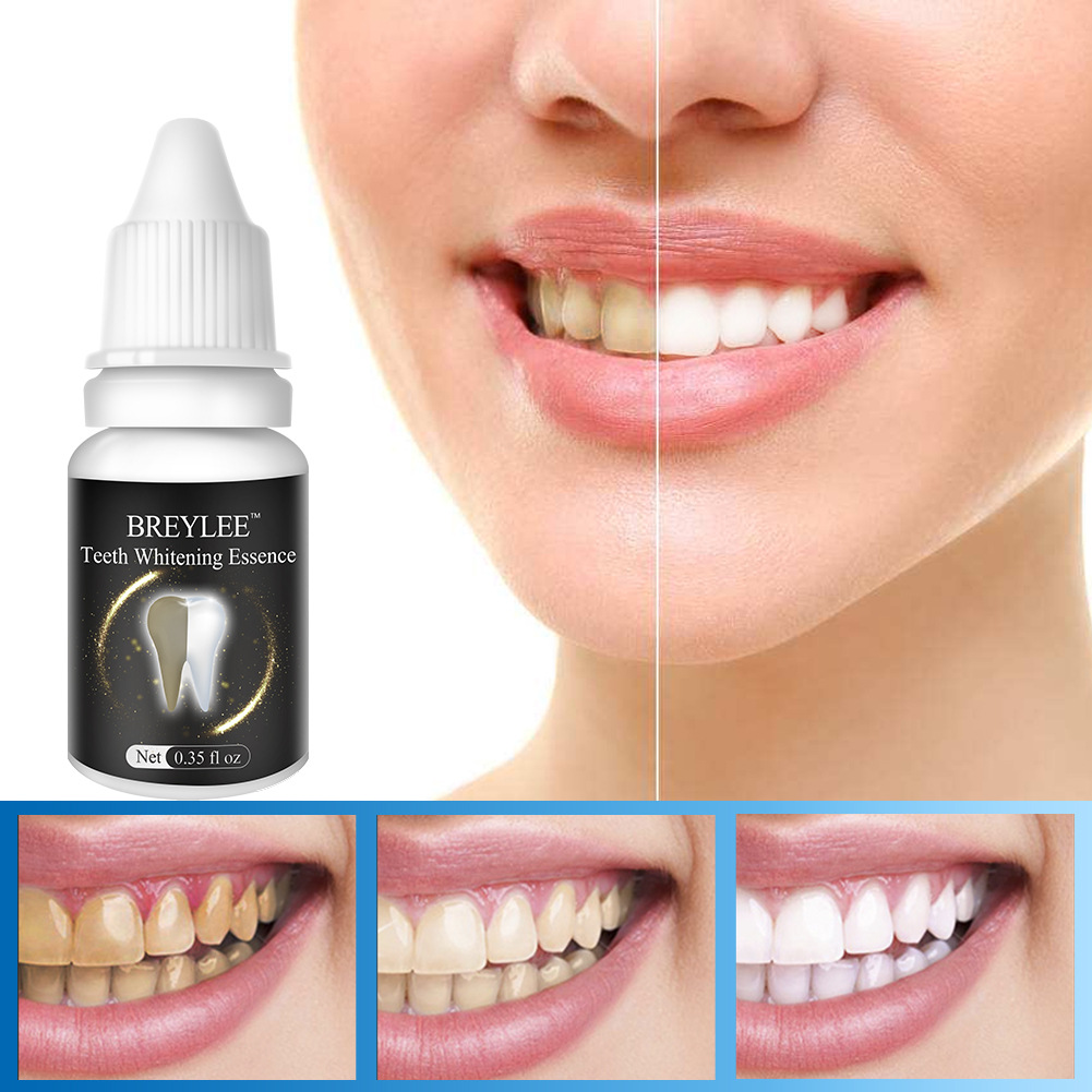 10 ml Teeth Whitening Cream Remove Black Tooth Yellow Tooth Toot